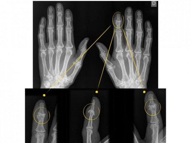 Images caractéristiques d'une Arthrite Micro-cristalline, ici de type goutte